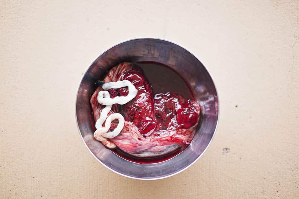 Placenta after delivery with delayed cord clamping - white umbilical cord.
